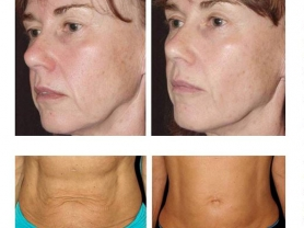 20% Off Thermage Skin Tightening