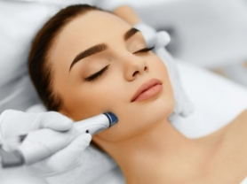 64% off Skin Needling Full Face and Neck, touch of heaven, think local deals